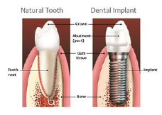 Natural Tooth vs. Dental Implant